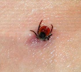 Как защититься от укуса клещей