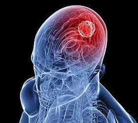 Отёк головного мозга